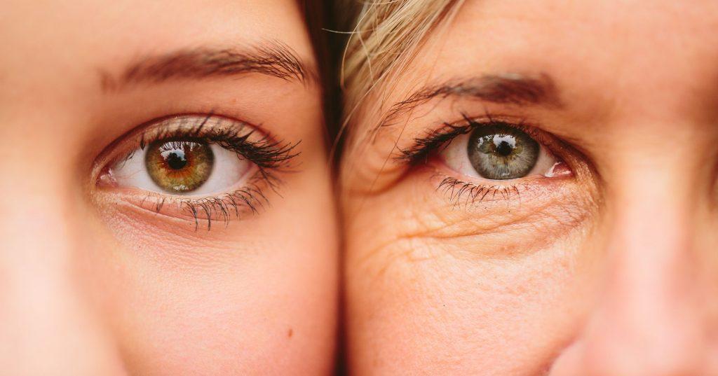 التجاعيد حول العينين