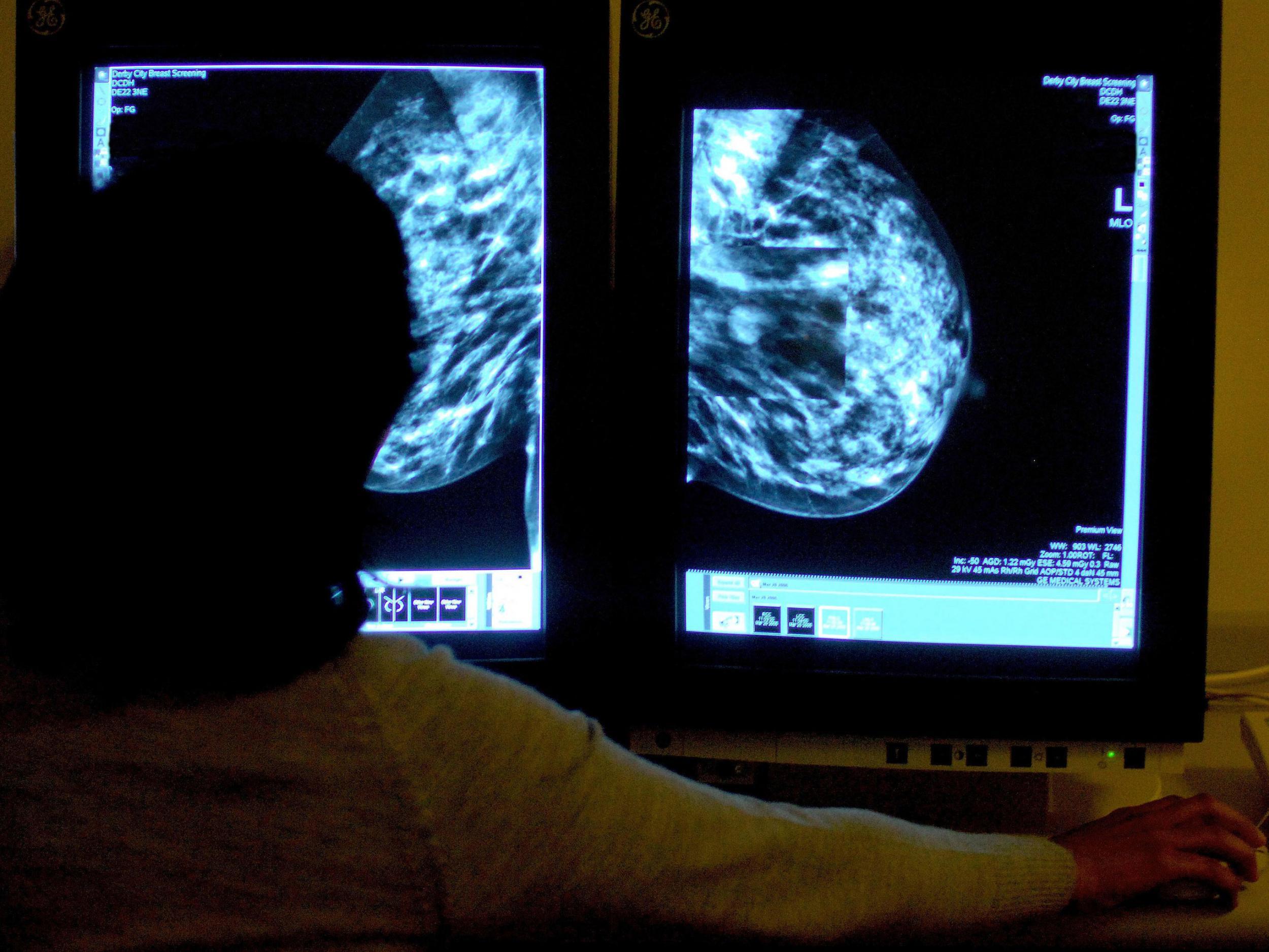 عملية تصغير الثدي