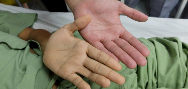 اصفرار اليدين والقدمين عند الأطفال