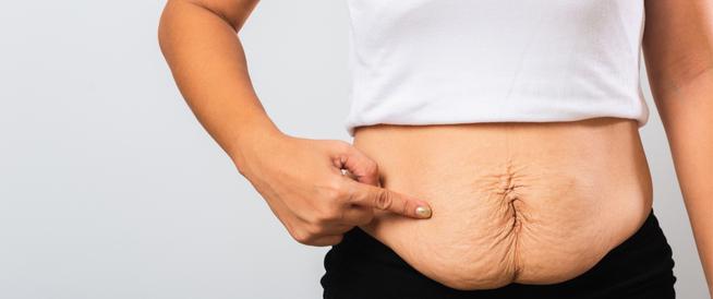 ترهلات البطن بعد الولادة