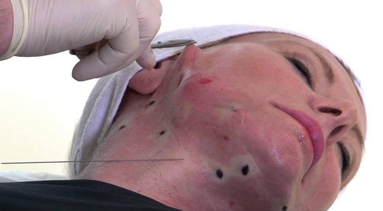 عمليات الوجه