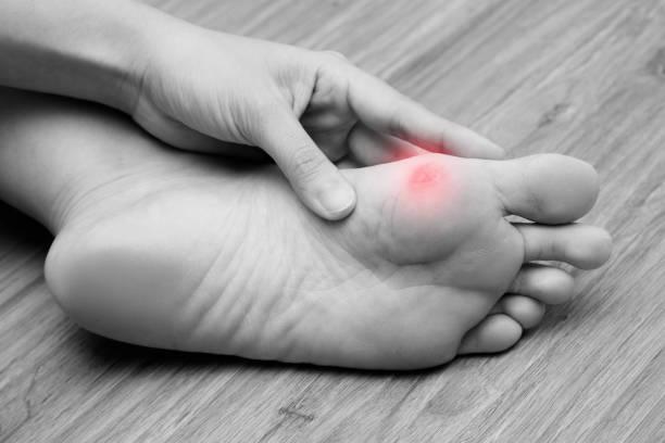 علاج مسمار القدم بخل التفاح، إليك كيف يتم ذلك؟
