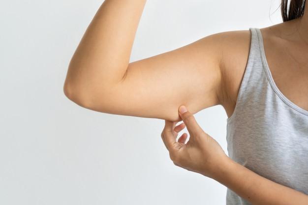 الجلد الزائد بعد فقدان الوزن