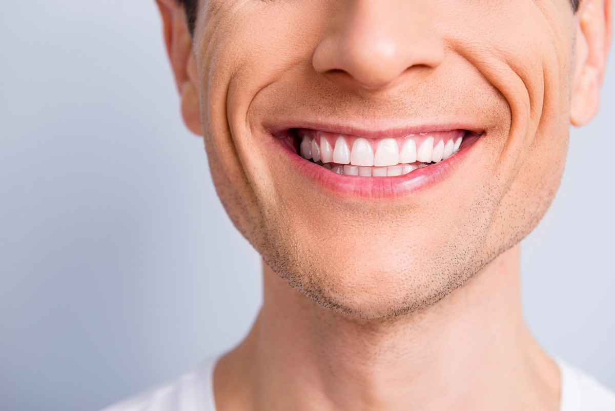 خطوط الابتسامة في الوجه