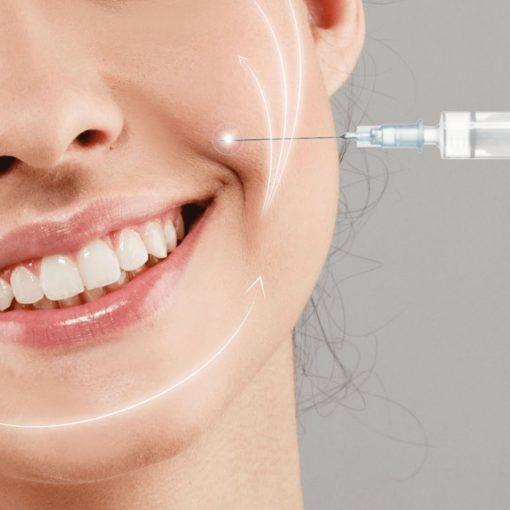 علاج خطوط الابتسامة