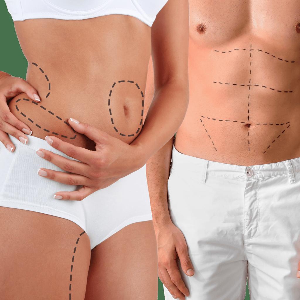 عملية شفط الدهون من البطن