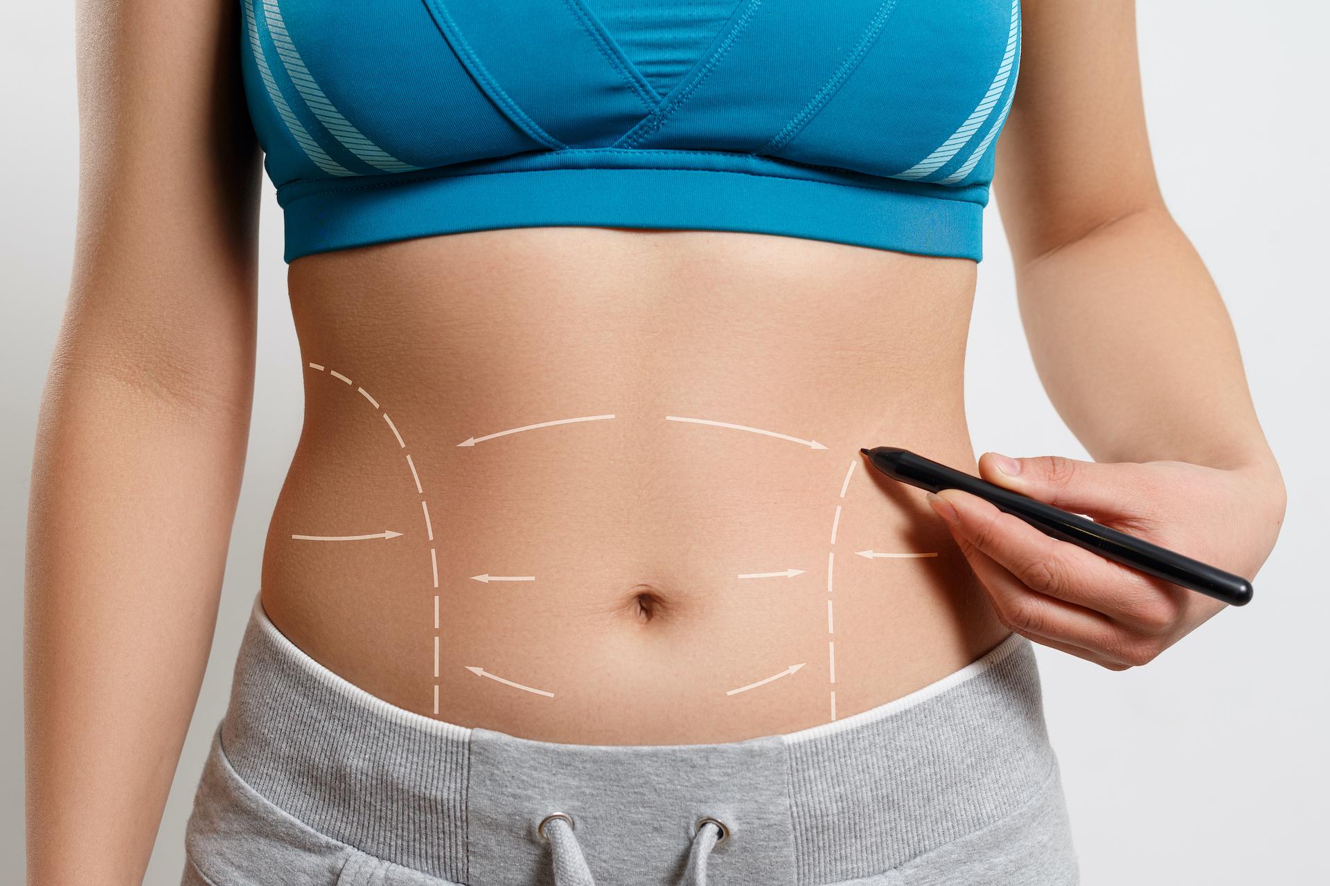 ما بعد عملية شفط الدهون
