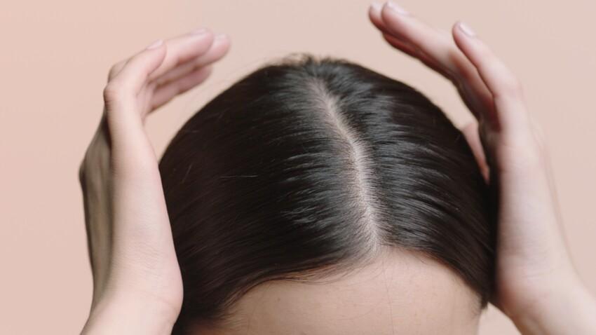 خلطة لإزالة القشرة من الشعر نهائيًا