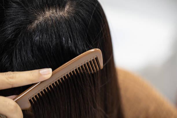 علاج القشرة الدهنية وتساقط الشعر