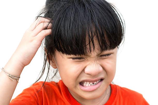 علاج قشرة الشعر عند البنات الصغار