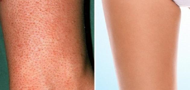 ازالة الشعر تحت الجلد في الساق