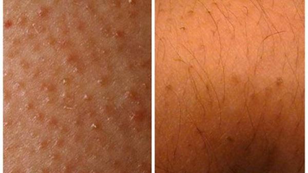 طريقة ازالة الشعر تحت الجلد