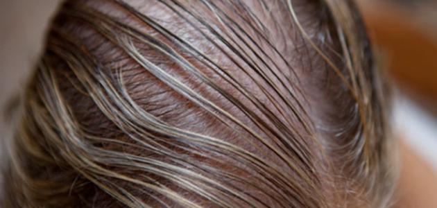 علاج الشعر التالف والمتقصف والخفيف