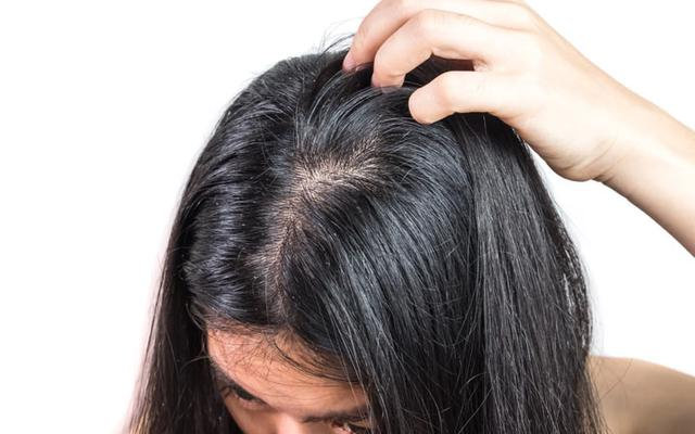 علاج الشعر المحروق من الفرد