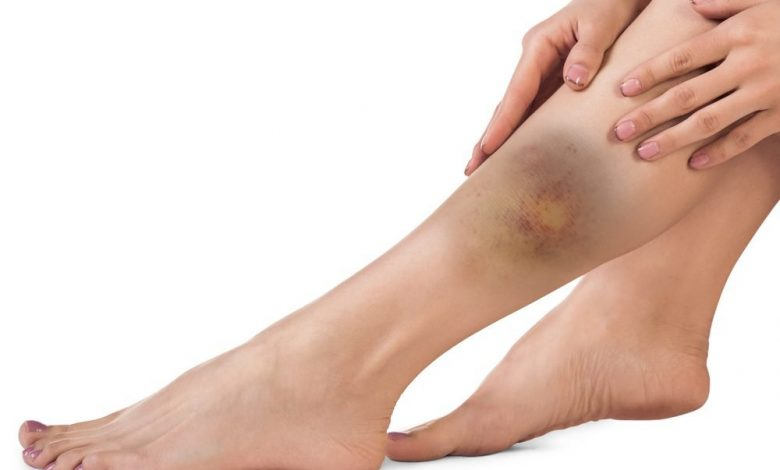 ما سبب ظهور اللون الاصفر في اثناء شفاء الكدم