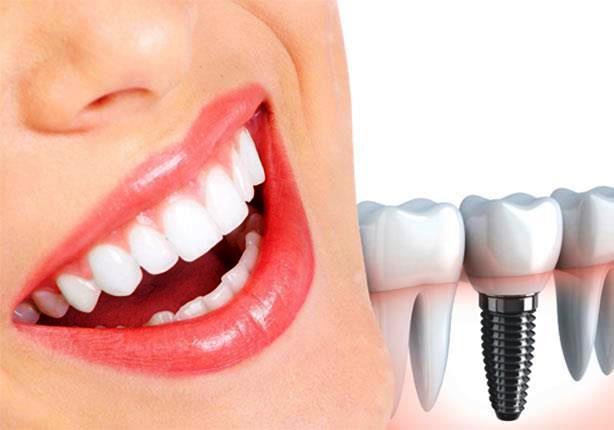 أنواع زراعة الأسنان واسعارها