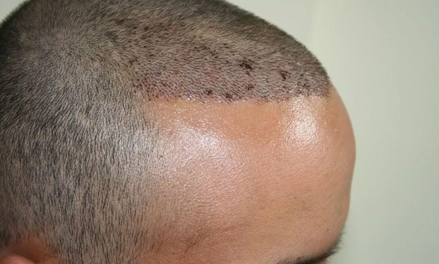 بعد عشرة ايام من زراعة الشعر