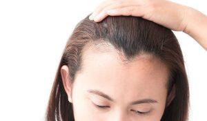 زراعة الشعر عن طريق الاستنساخ