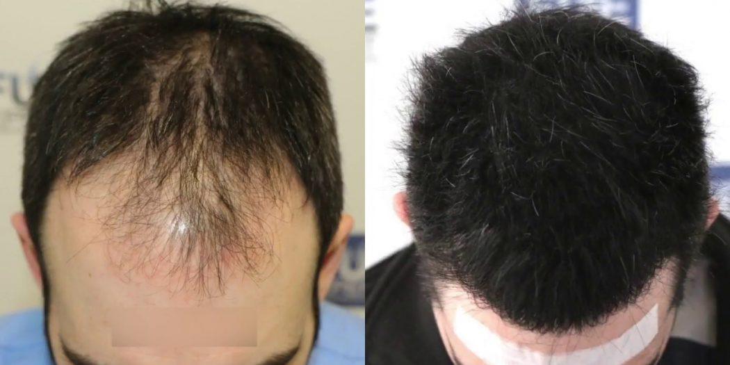 طريقة زراعة الشعر بالاقتطاف