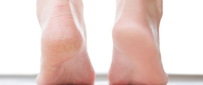 علاج تشققات القدمين في يوم واحد فقط مجرب وفعال