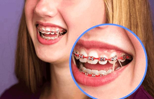 كيف يشدون تقويم الأسنان