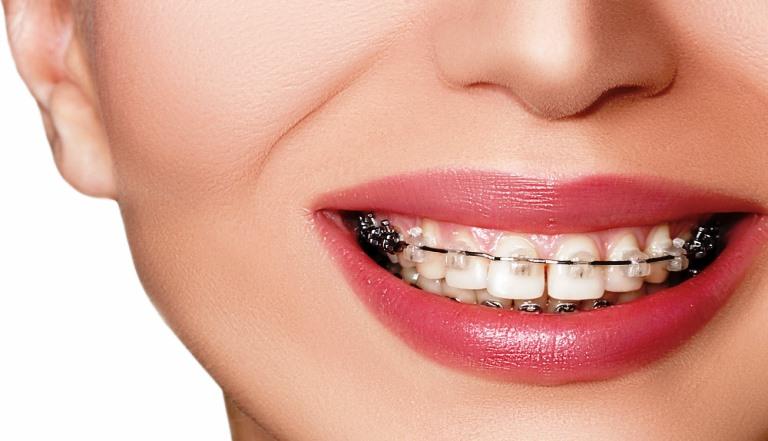 مدة تقويم الأسنان البارزة