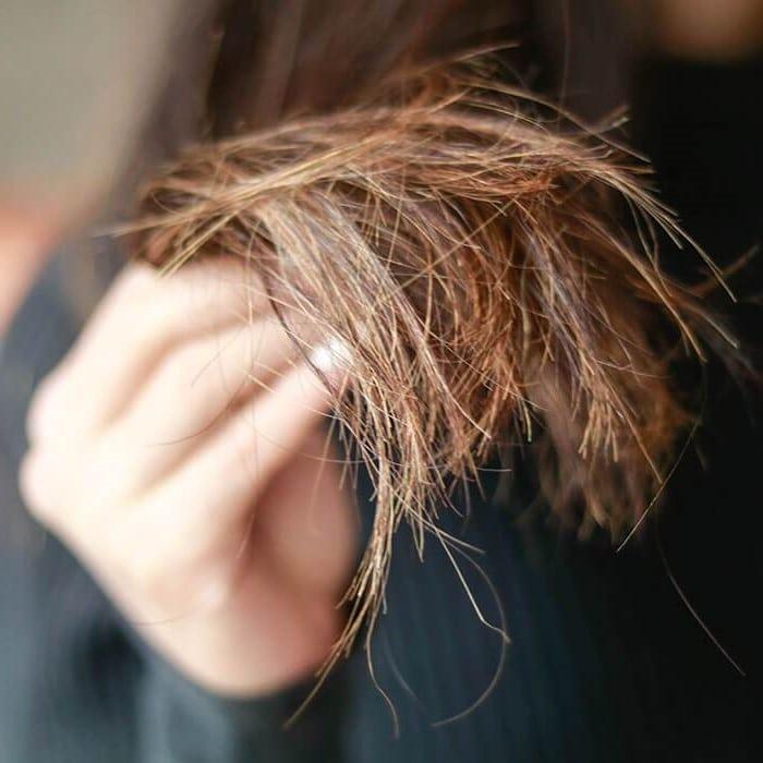 إزالة تقصف الشعر في يومين