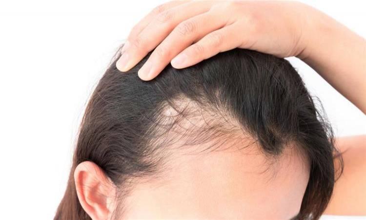 علاج تقصف الشعر من الأمام وجفافه